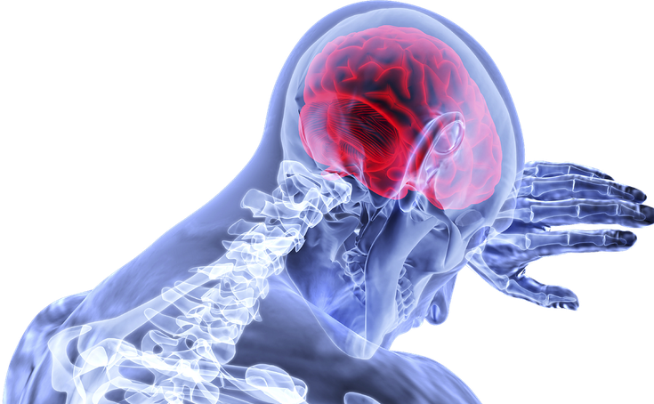 Covid and the brain: Coronavirus can cause memory loss, strokes and other effects on the brain