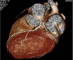 How stem cells work to repair raptured heart tissues, increase blood flow