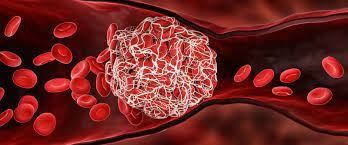 Possible cause of Covid vaccine blood clots: Drug is injected and enters bloodstream directly